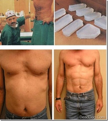 abs enhancement