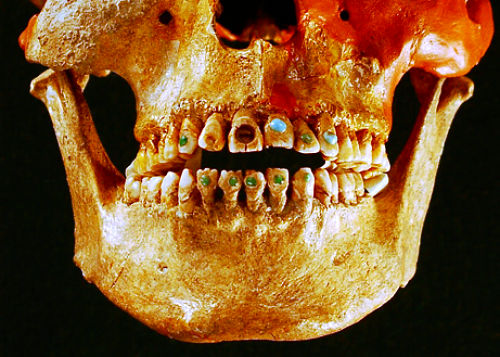 skull-ancient-gemstudded-teeth
