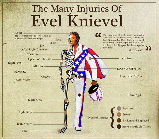 evel-the-many-injuries-of-evel-knievel