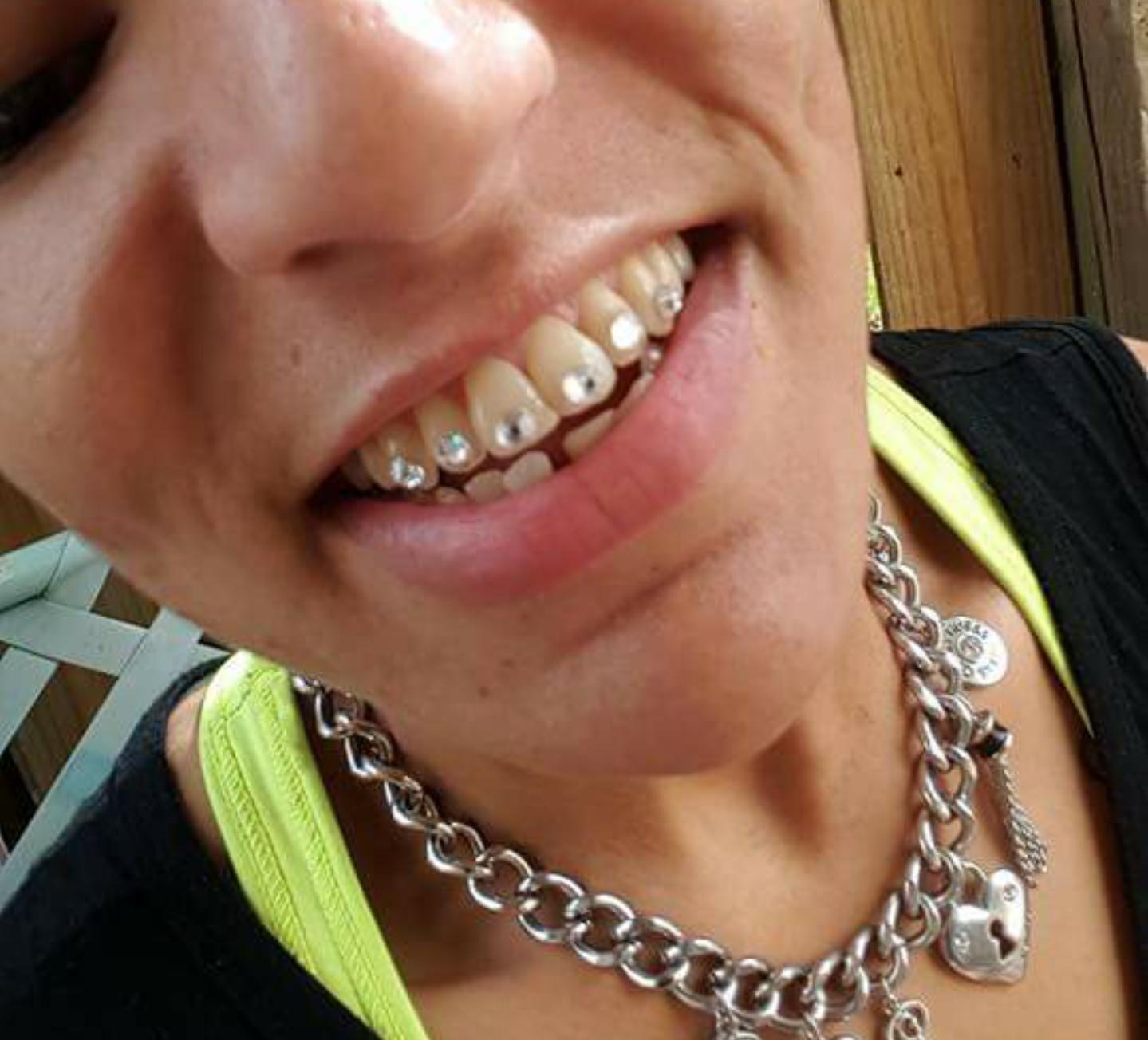 Diamond Teeth - Best Beauty Diamond Stokmatik Com