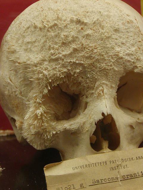 skull_cancer.jpg (135 KB)