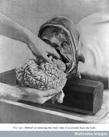 brain.jpg (102 KB)