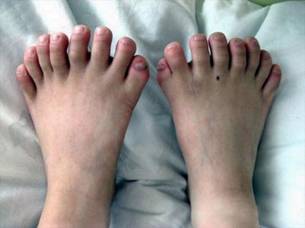 Lots of little piggies small Piggies wtf toes Piggies mutant interesting feet awesome