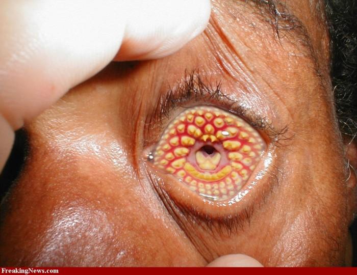 Lamprey-Disease-34980.jpg (258 KB)