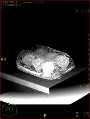 twink5 CT scan of a Twinkie