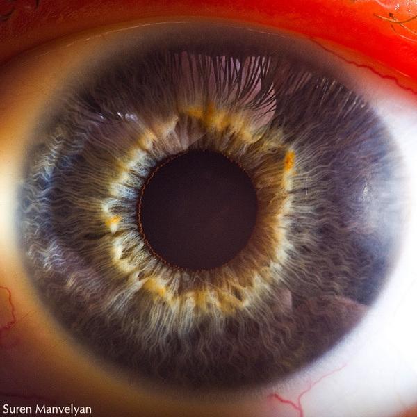 eye2.jpg (173 KB)