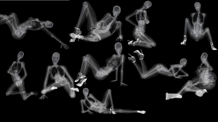 o445364 700x393 x ray porn Wallpaper Science! Humor