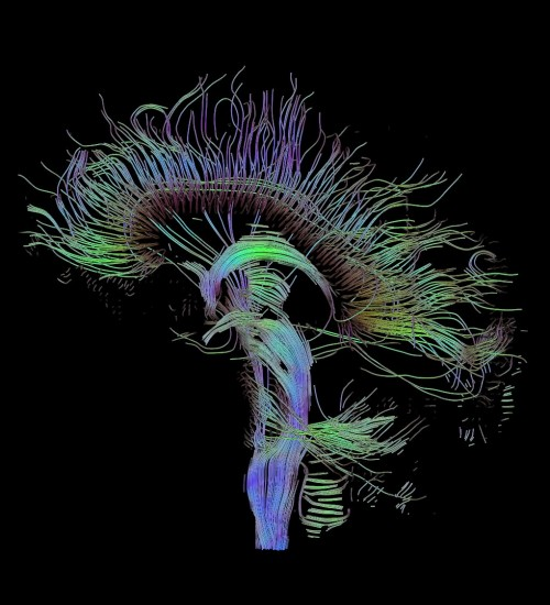 DTI-sagittal-fibers.jpg (203 KB)
