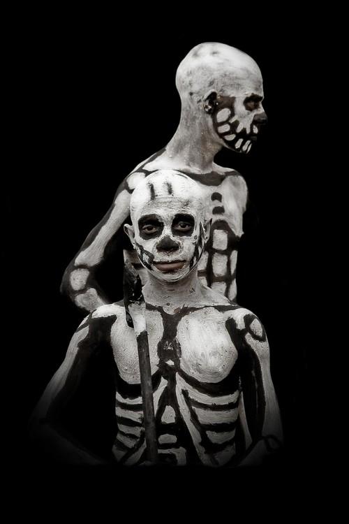 skeletal.jpg (159 KB)