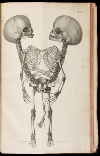twinskel1 323x500 Siamese Twin Skeleton Drawing wtf Science!