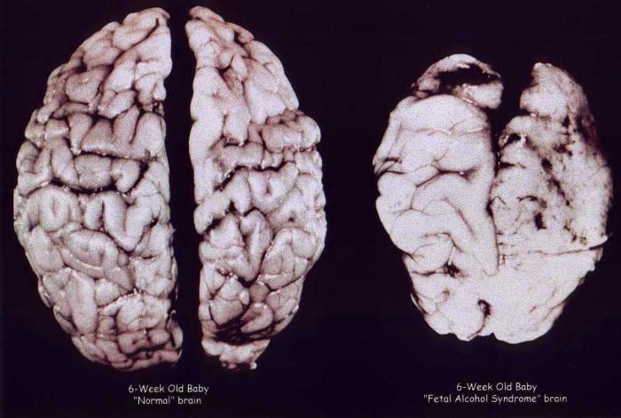 Fetal Alcohol Syndrome.jpg