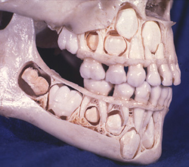 Baby-skull.jpg (45 KB)