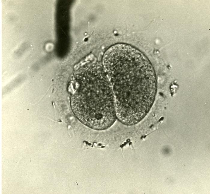 Human egg in two-cell stage.png (2 MB)