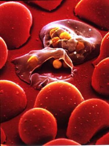 Malaria%20Invading%20Red%20Blood%20Cell.thumbnail Malaria Invading Red Blood Cell Science!